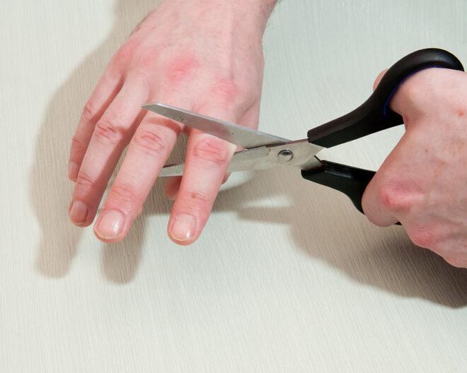 حلم قطع الإصبع
